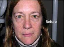eyelid-surgery-before